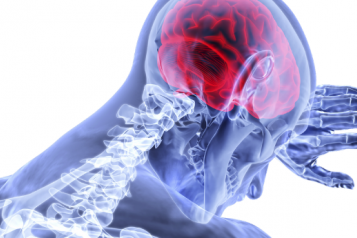 A head and shoulders shot of a person. The brain is highlighted red and the spine is white.